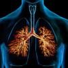 Bronchitis , toug