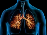 Bronchitis , tough times for the respiratory system