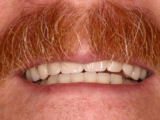 Denture: a solution for teeth