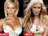 Perfect breasts: how to get without surgery
