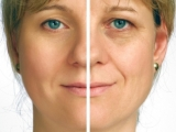 A facelift with cosmetic treatments