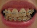 Choose Suitable For Your Orthodontist Dental