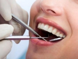The Dental Center at Quebec: For A Good Dental Hygiene
