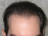 "The ""fue"" with Micro-aspiration: a ""hair transplant"" automated"