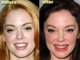 Psychological Benefits of Plastic Surgery