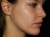 Acne: Causes and Symptoms
