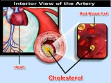 "High cholesterol, HDL cholesterol less ""good"" than you think?"