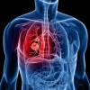 Lung cancer: symptoms, stages and diagnosis