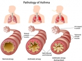 Allergic Asthma: Symptoms, treatment and natural remedies