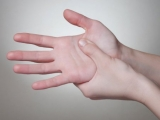 Tingling in hand: possible causes and remedies