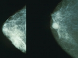 Breast cancer: prevention, symptoms, treatments and chemotherapy