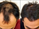 Treatment for hair grow