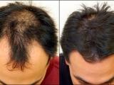 Treatment for hair grow