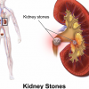 Easy Methods For Kidney stones
