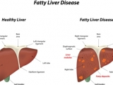 How to cure fatty liver with home remedies