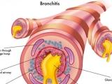 Symptoms of Allergic Bronchitis