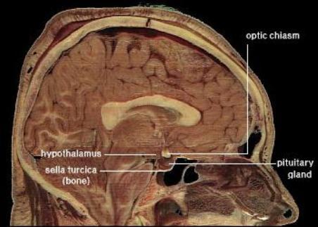 Hypothalamu_s