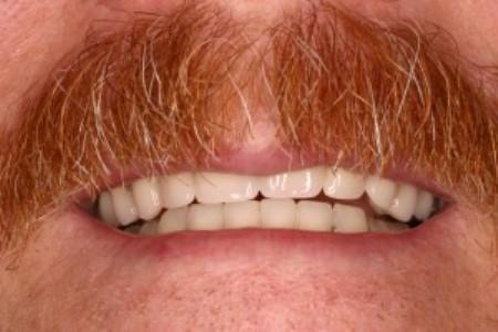 dentures-solution