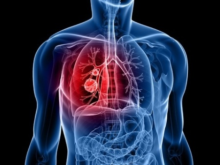 Lung cancer: why women catching up with men