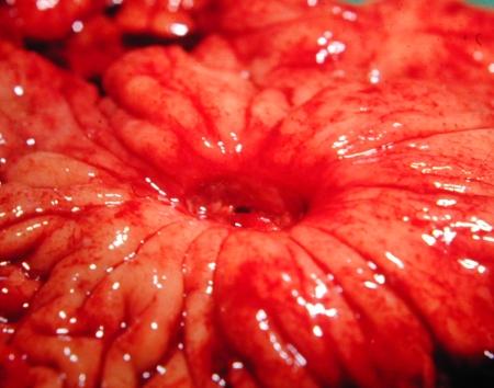 ulcer-s