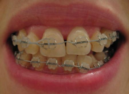 dental-dental