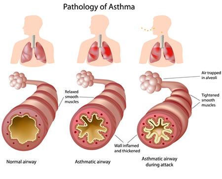 allergic-asthma