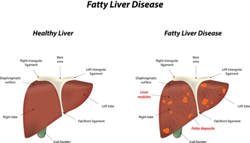 cure fatty liver