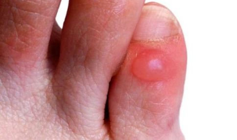 remedies for blisters