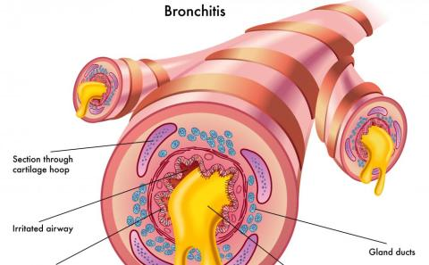 Symptoms of Allergic Bronchitis